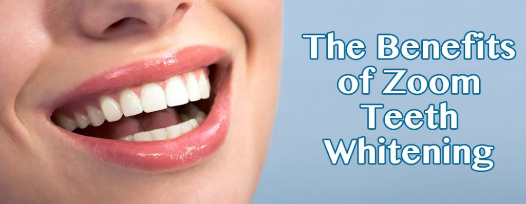 The Benefits of Zoom Teeth Whitening in Crown Point